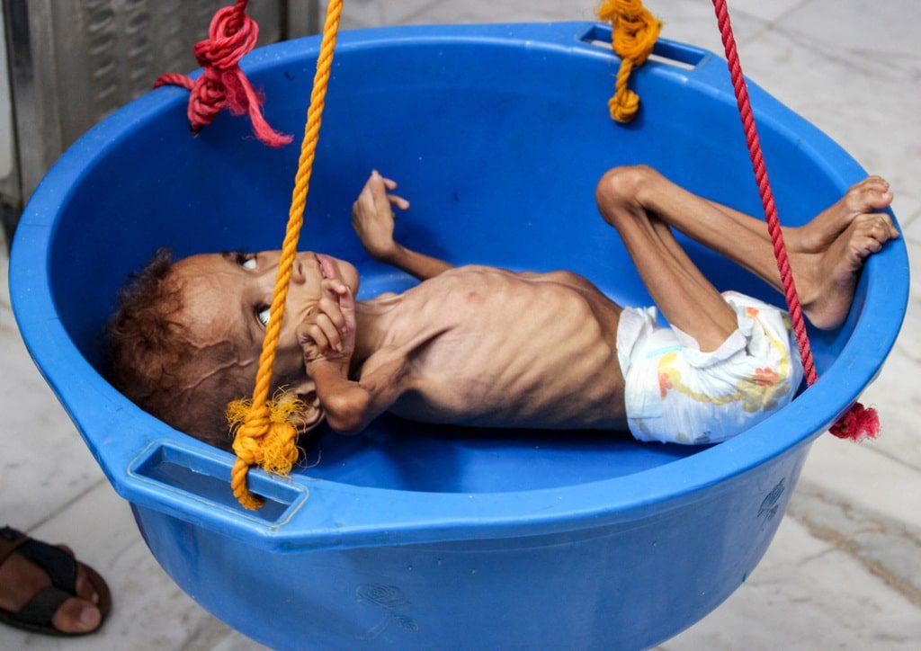 Yemen- malnutrition yemen