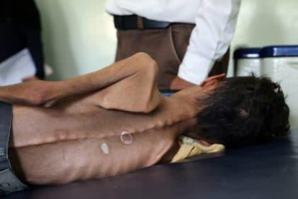 Yemen is the World's Biggest Humanitarian Disaster: Save the Children